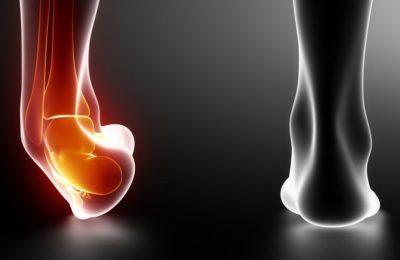 ¿Qué hacer para curar un esguince de tobillo?