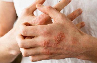 ¿Cuál es la causa de la psoriasis?