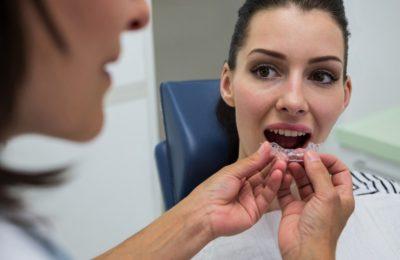 ¿La ortodoncia invisible mejora el bruxismo?